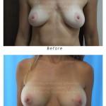 Mammoplasty