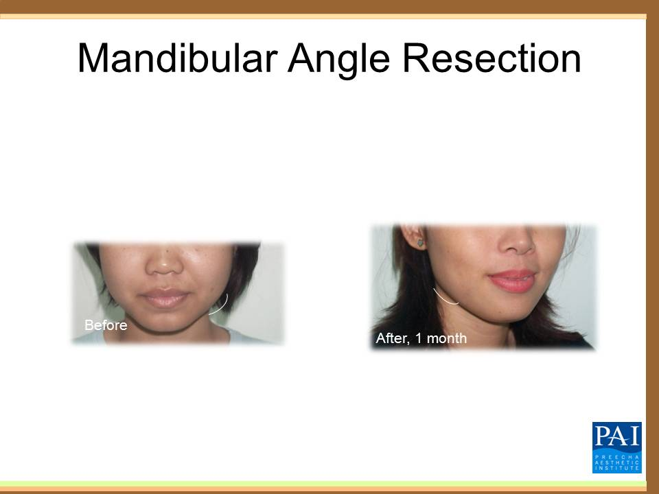 Mandible Angle Resection surgery