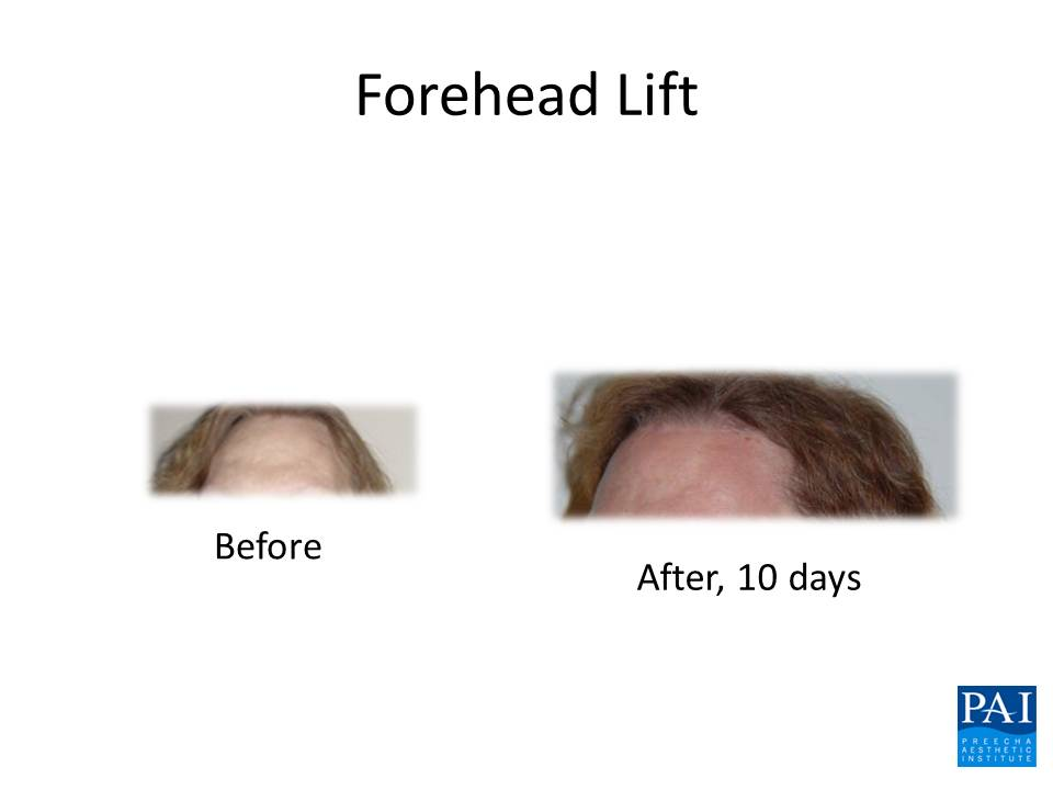 Forehead Lift / Lower Hairline