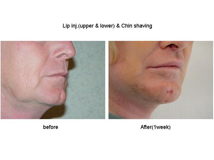 Chin Shaving