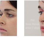 total nasal surgery