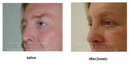 Skin reduction surgery cost