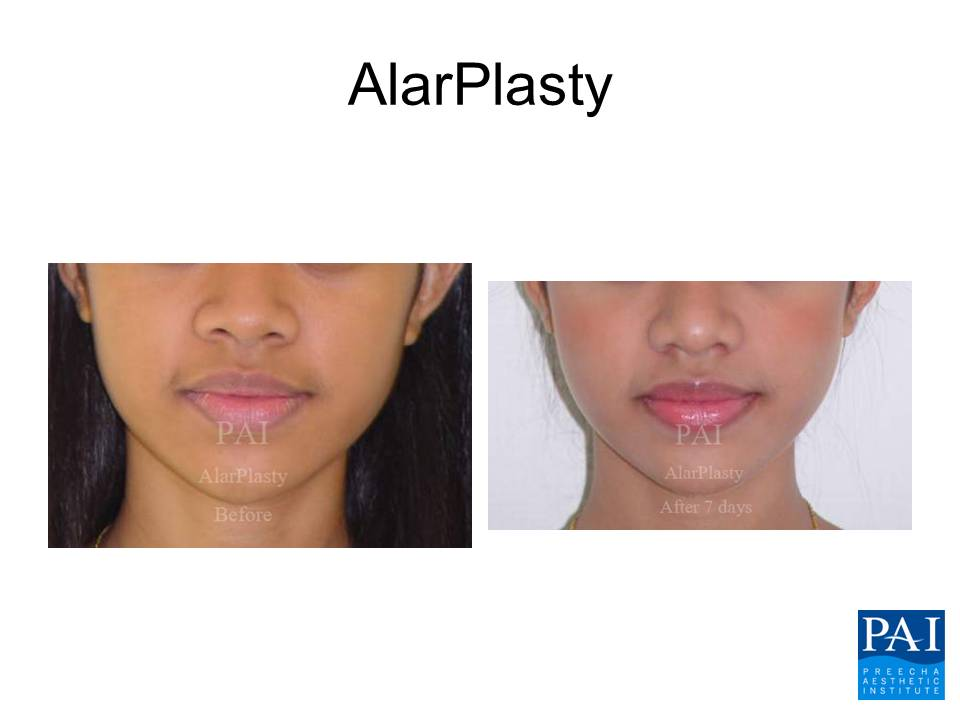 Alarplasty