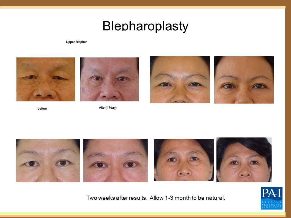 ศัลยกรรมเเก้ไขหนังตาตก หรือไขมันใต้ตา (Blepharoplasty)
