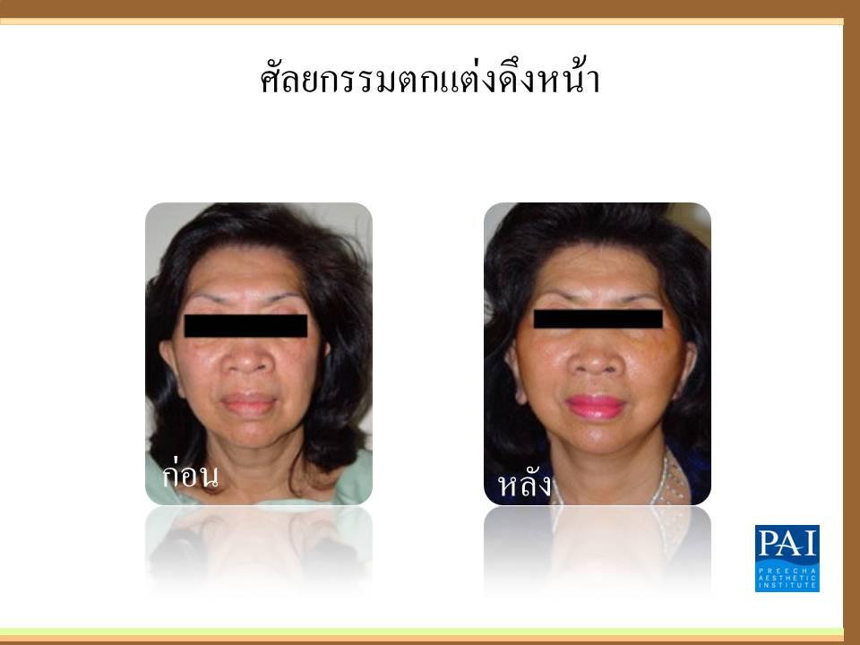 ศัลยกรรมตกเเต่งยกกระชับใบหน้าทั้งหมด (หน้าและลำคอ)