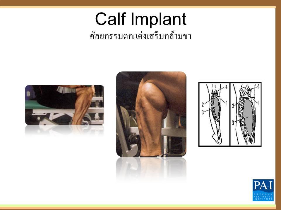 ศัลยกรรมตกเเต่งกล้ามน่องขา