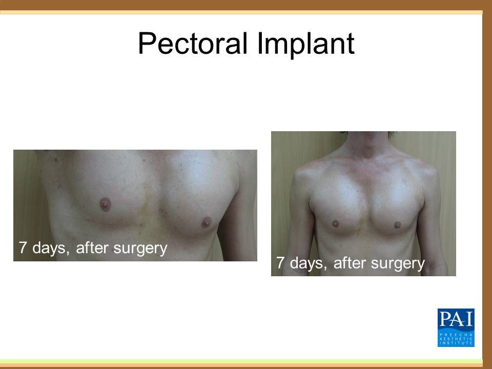 ศัลยกรรมตกเเต่งเสริมกล้ามเนื้อหน้าอก (Pectoral Implant)