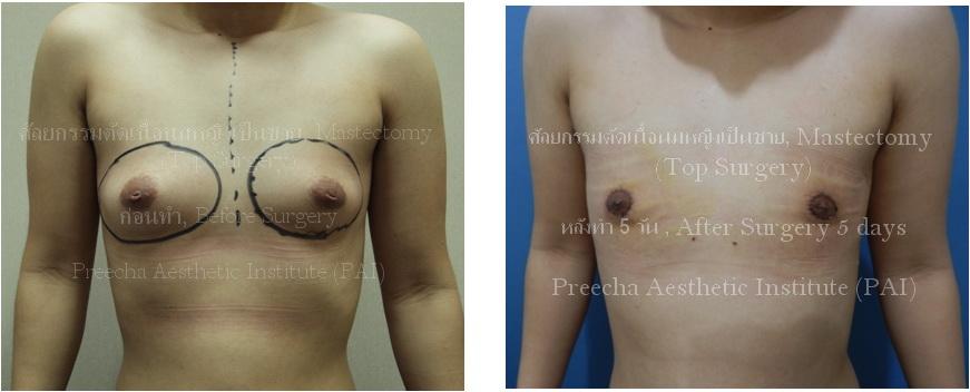 ศัลยกรรมตัดเนื้อนมสำหรับหญิงเป็นชาย
