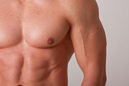 ศัลยกรรมเสริมกล้ามเนื้อหน้าอก (Pectoral Implant)