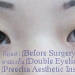 ก่อนศัลยกรรมตาสองชั้น